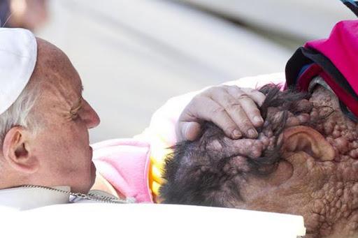 Pope Francis embraces disfigured Vicinio Rivas
