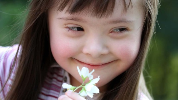 GIRL,DOWN SYNDROME